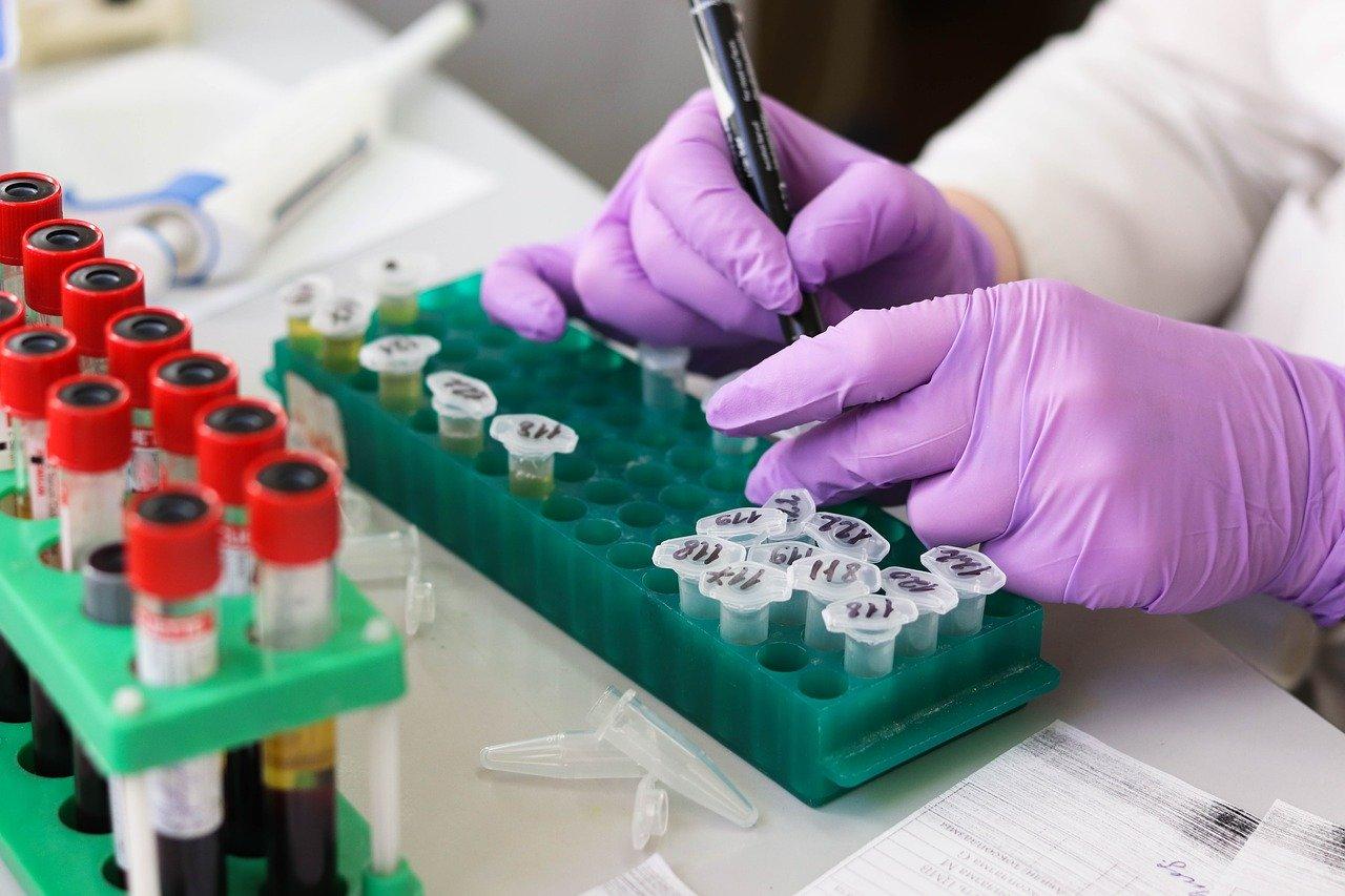 Ученые: Соевые продукты защищают от рака толстой кишки